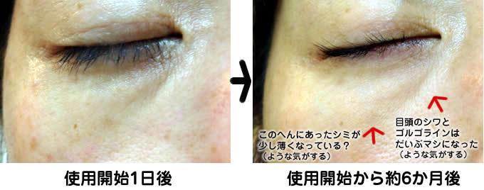 eyeserum02
